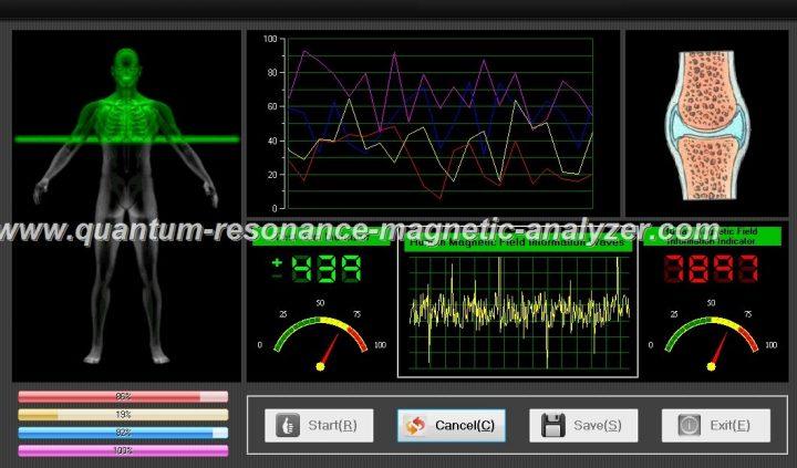 quantum resonance magnetic analyzer (11)