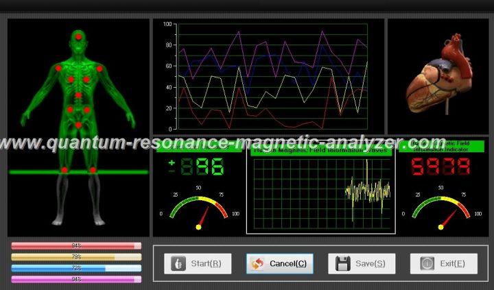 quantum resonance magnetic analyzer (8)