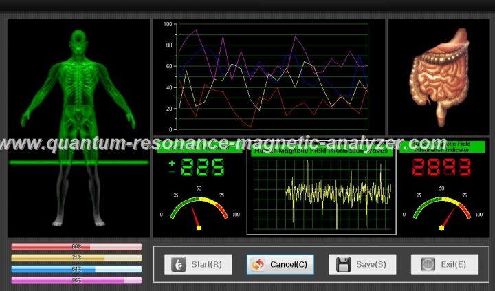 quantum resonance magnetic analyzer (9)