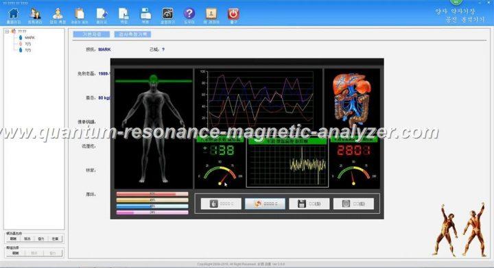 how to use the 양자 약 자기장 공진 분석기기 Korean version Quantum Resonance Magnetic Analyzer (5)