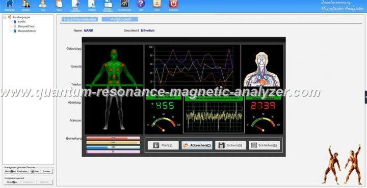 how to use the German version Quantum Resonance Magnetic Analyzer QUANTENRESONANZ MAGNETISCHER ANALYSATOR (9)