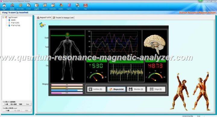 how to use the Hungarian version Quantum Resonance Magnetic Analyzer Quantum Rezonancia Mágneses Analyzer (11)