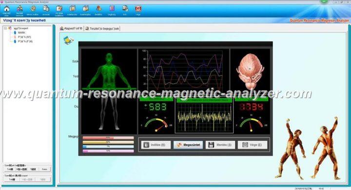 how to use the Hungarian version Quantum Resonance Magnetic Analyzer Quantum Rezonancia Mágneses Analyzer (12)