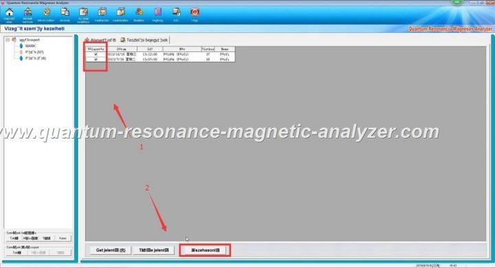 how to use the Hungarian version Quantum Resonance Magnetic Analyzer Quantum Rezonancia Mágneses Analyzer (18)