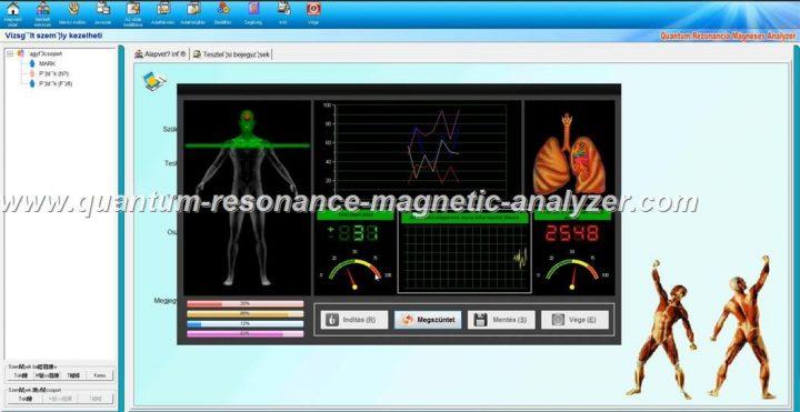 how to use the Hungarian version Quantum Resonance Magnetic Analyzer Quantum Rezonancia Mágneses Analyzer (22)