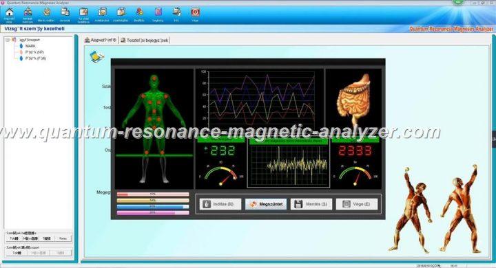 how to use the Hungarian version Quantum Resonance Magnetic Analyzer Quantum Rezonancia Mágneses Analyzer (6)