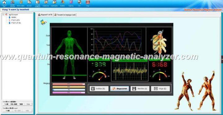 how to use the Hungarian version Quantum Resonance Magnetic Analyzer Quantum Rezonancia Mágneses Analyzer (8)
