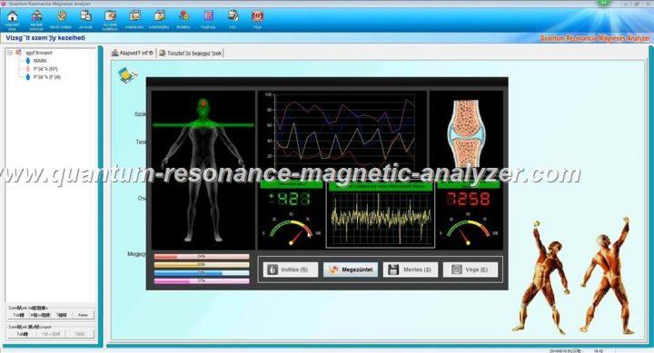 how to use the Hungarian version Quantum Resonance Magnetic Analyzer Quantum Rezonancia Mágneses Analyzer (9)