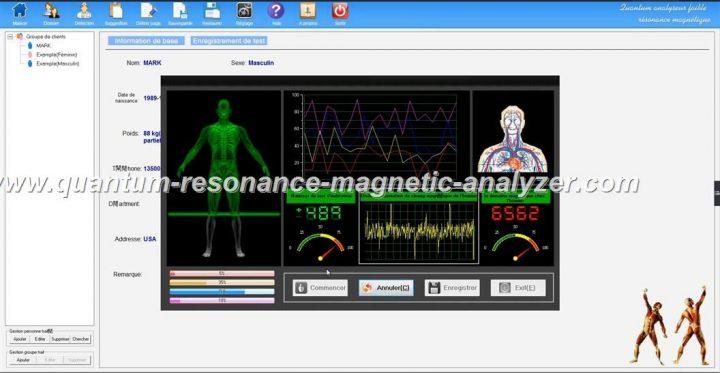 how to use the french version Quantum Resonance Magnetic Analyzer Quantum analyseur faible résonance magnétique (10)