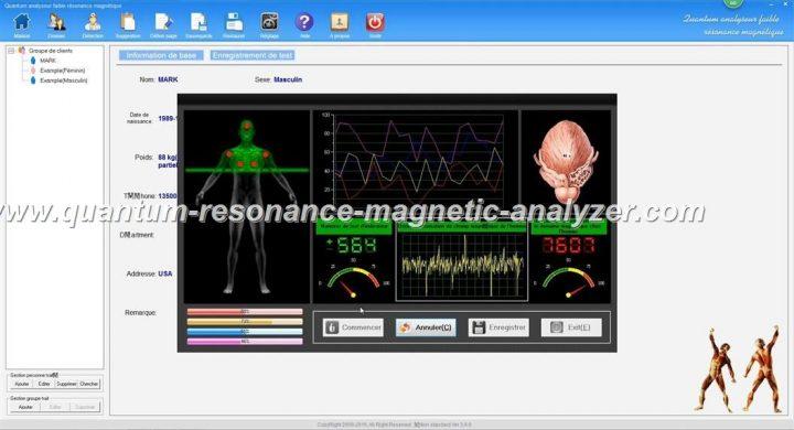 how to use the french version Quantum Resonance Magnetic Analyzer Quantum analyseur faible résonance magnétique (11)